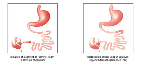Illeal Transplantation