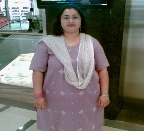 Dr. Gowri Joshi,Before Gastric Bypass  Surgery, Oct 2009